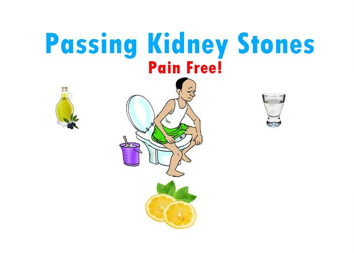 Pass Kidney Stones